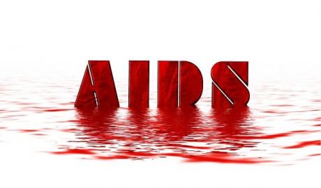 SIDA. ¿Qué es? causas, contagio, fases, prevención